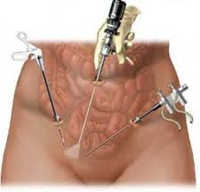 Power Morcellation in Uterine Surgery